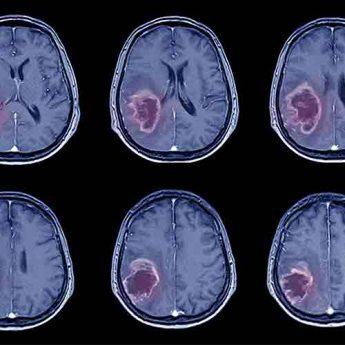 Tumor-head-analysis